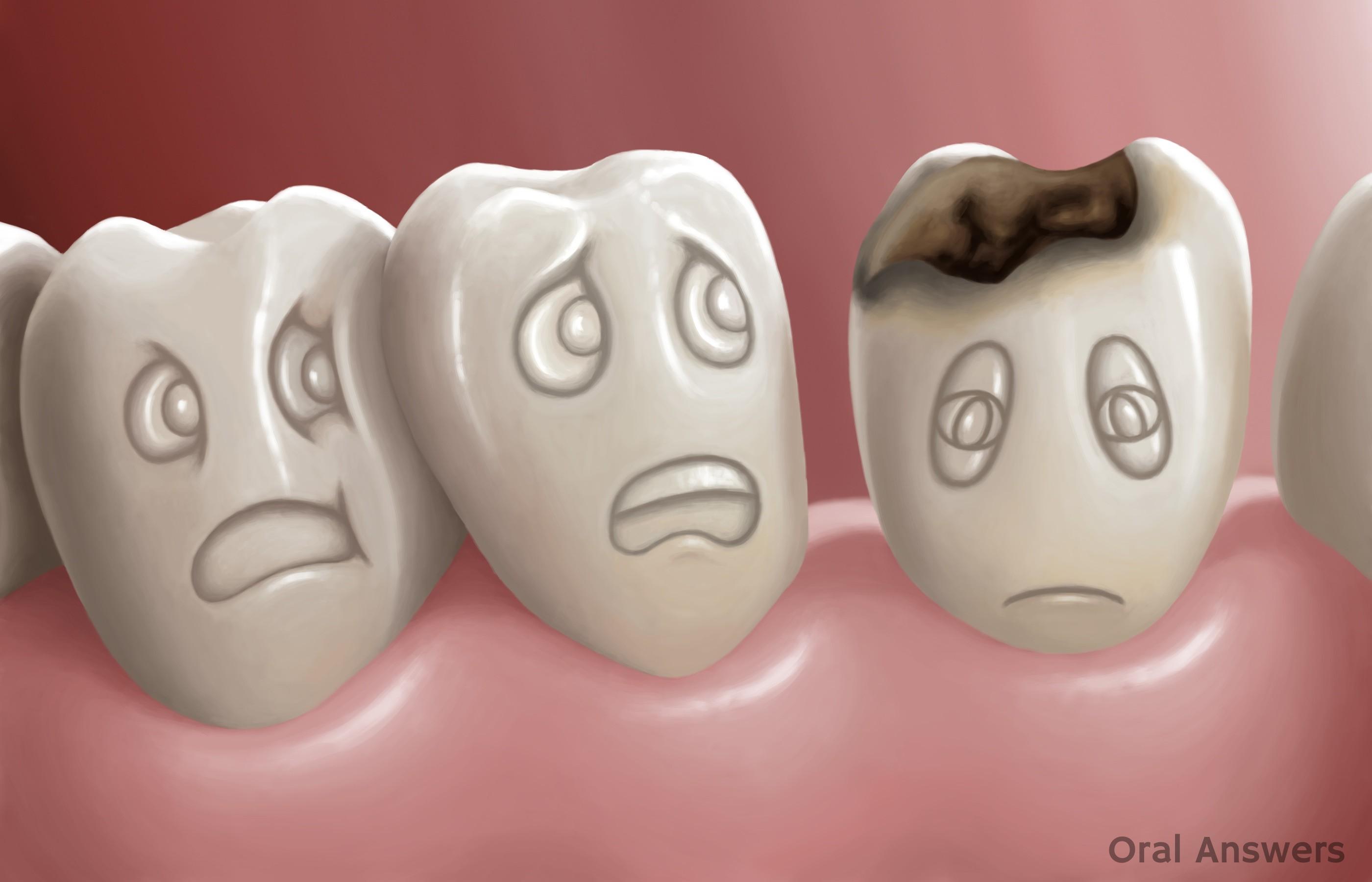 Naujausi tyrimai: Vaistai nuo Alzhaimerio skatina natūralius procesus dantyje.
